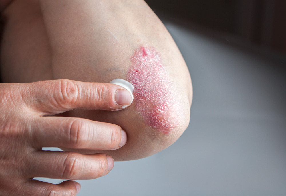 Psoriasis is diagnosed based mainly on the symptoms you have 1