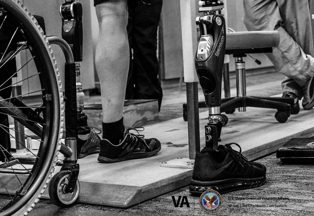 A giant step in the next generation of prostheses for Veteran amputees