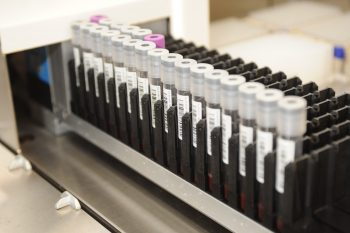 Blood samples from the Million Veteran Program