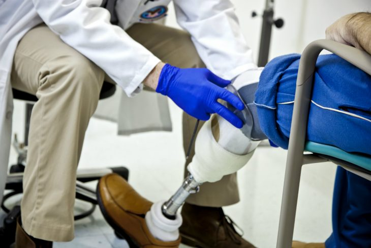 Prosthetics at VHA: Helping amputee Veterans with the latest in technology