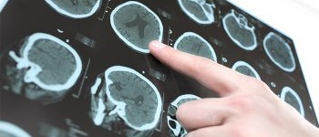 CT scan of the patient's brain and the hand of a doctor. Photo.