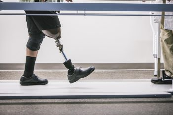 Take a look at some of our most recent accomplishments in the field of prosthetics.