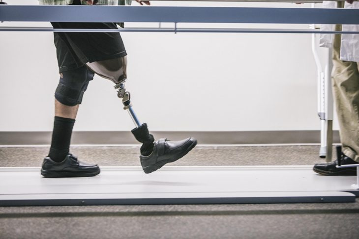 Build on VA's history of achievement in prosthetics for Veterans