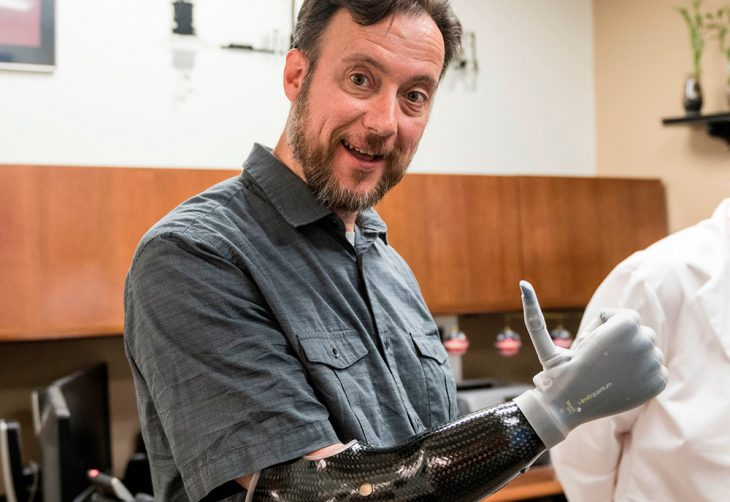 Veteran Daniel Glanz and his high-tech prosthetic robotic hand
