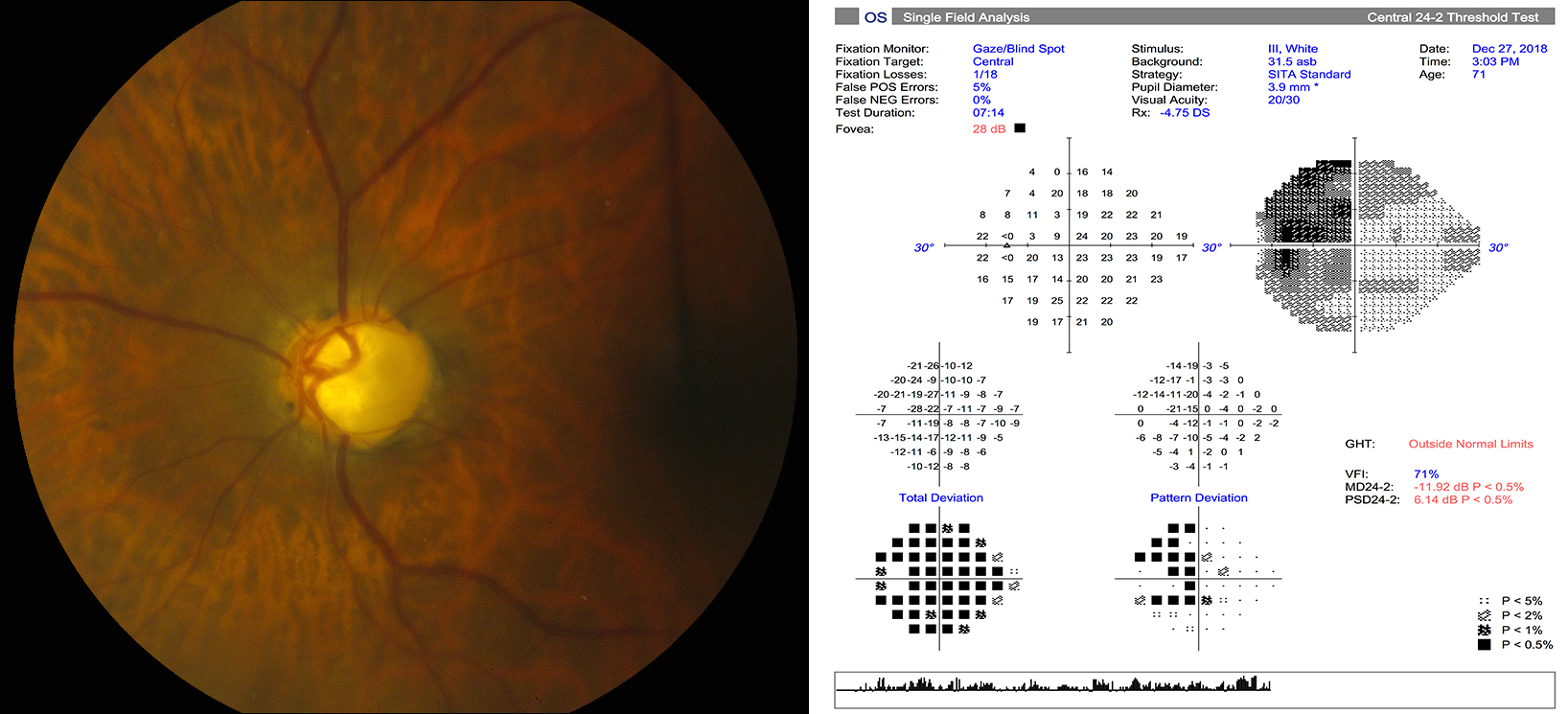 Eye and exam chart