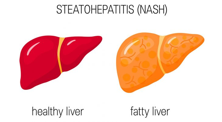 Non-alcoholic steatohepatitis (NASH). Vector illustration of a healthy and a fatty liver in flat style