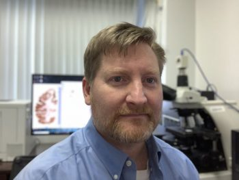 Dr. Bertrand Huber is the director of the PTSD Brain Bank at the VA Boston Healthcare System.