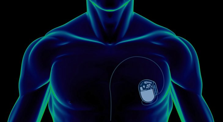 Design of human torso showing pacemaker
